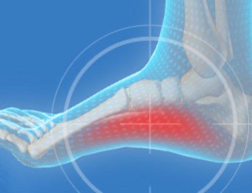 Dealing With Foot Discomfort