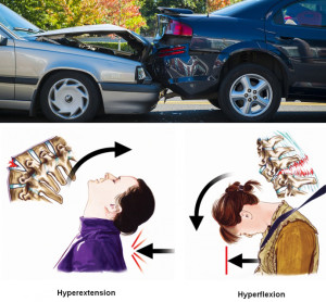 car accident treatment